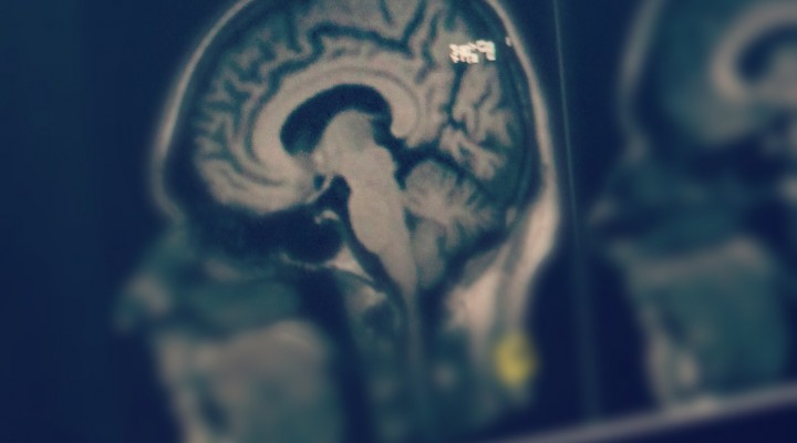 MRI Centrum Zero Foot Print viewer